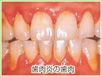 が 痒い 歯茎